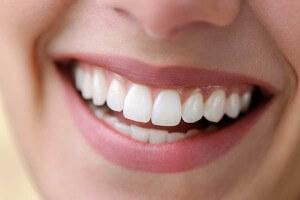 Close Up White Smile